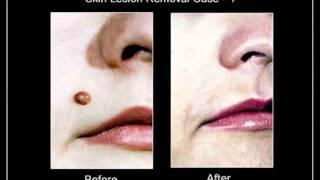 Skin Lesion(Nevus) Removal Toronto Thumbnail
