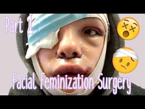 Facial Feminization Surgery - Day 1 & 2 (GRAPHIC) | Stef Sanjati