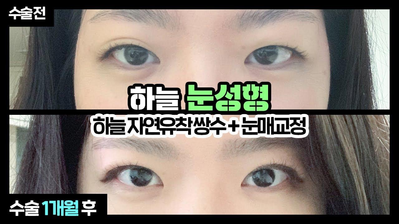 [부산쌍수/눈성형] 부어보이는 눈+짝눈이 고민이신가요?! 😮 하늘자연유착쌍수&눈매교정 1개월간의 변화과정 💙