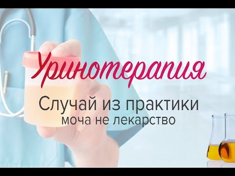 Уринотерапия. Случай из практики: моча не лекарство