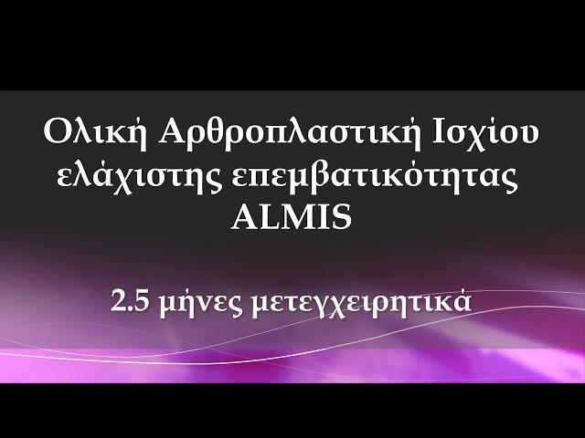 Ολική Αρθροπλαστική Ισχίου ALMIS - 2.5 μήνες μετά - Δρ. Ν. Ροϊδης