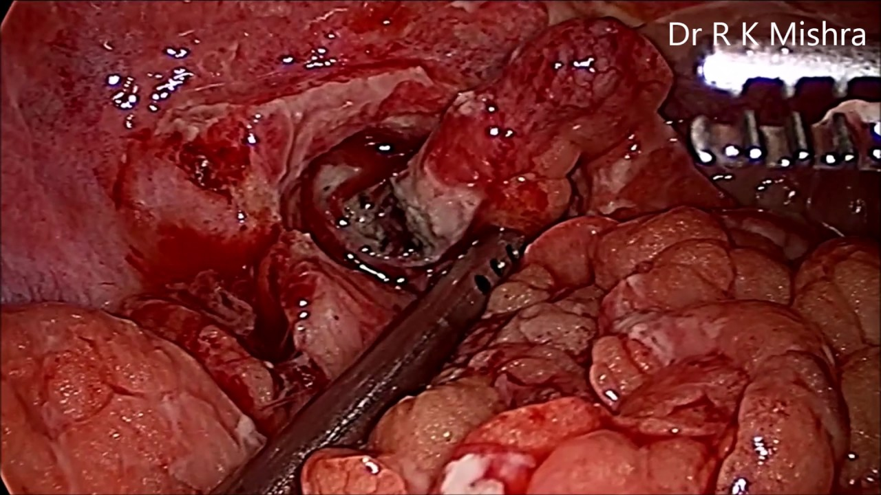 Ruptured Appendix - YouTube