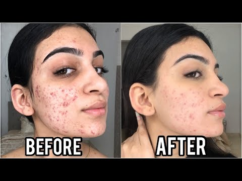 one-week-of-cinnamon-mask-on-my-face-to-get-rid-of-acne-*shocking-results*