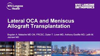 Lateral OCA and Meniscus Allograft Transplantation