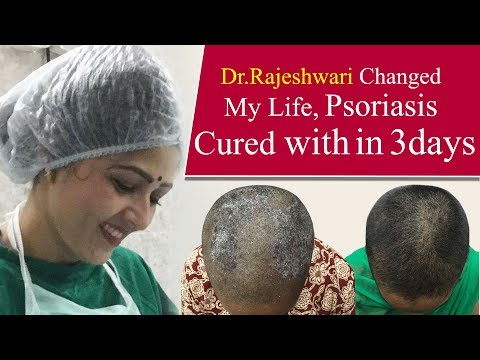 how-to-cure-scalp-psoriasis-instantly-|-dr-rajeshwari's-health-care