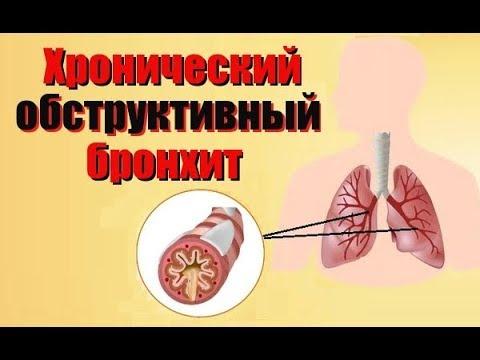 Хронический обструктивный бронхит
