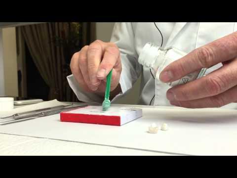 Clinical Techniques: Cementation