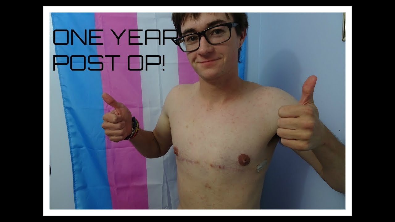 1 Month Post-Op FTM TOP SURGERY - YouTube