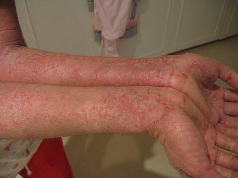 vinegar-for-eczema