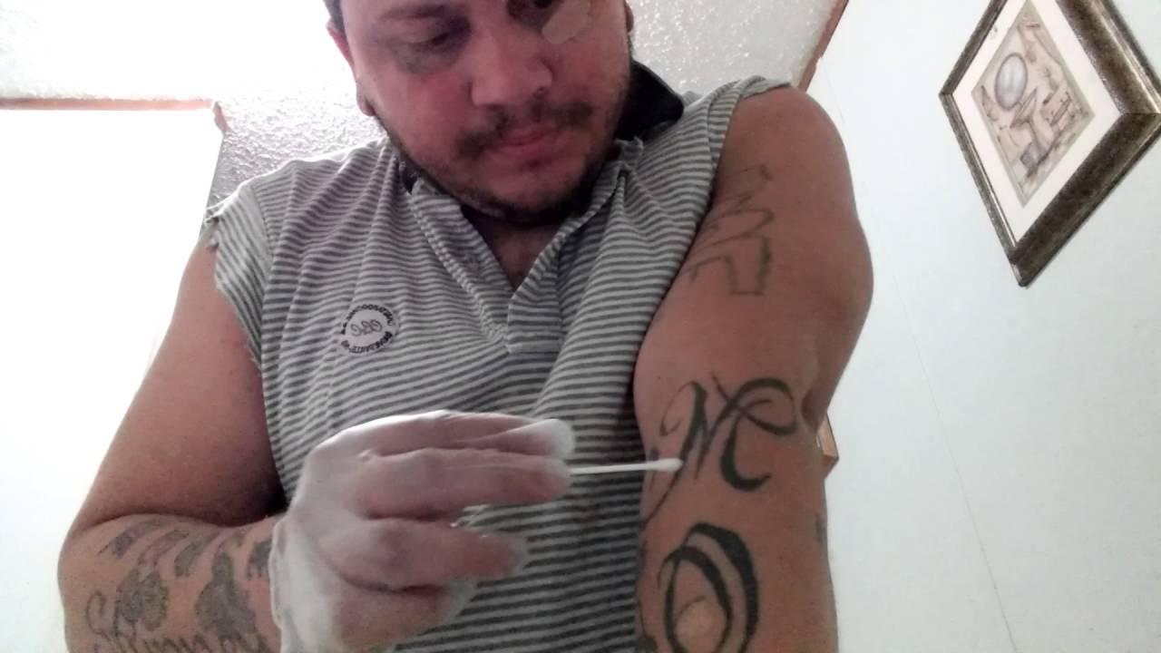 Tca 100 Tattoo Removal