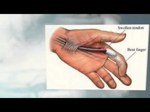 Ring Finger Hurts Mouse