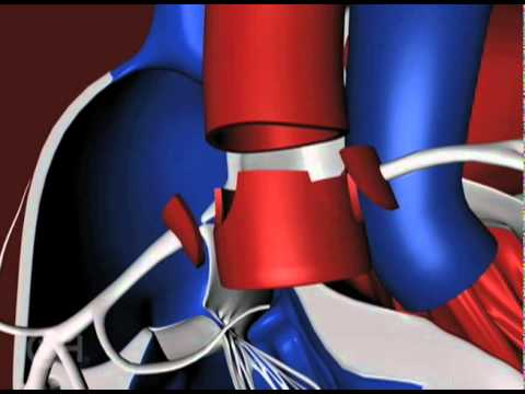 The Arterial Switch Operation to Treat Transposition of the Great Arteries (TGA) - CHOP