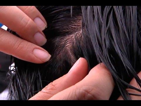 piojos en imágenes de cabello
