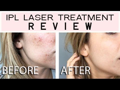 Ipl Laser Treatment Reivew Youtube