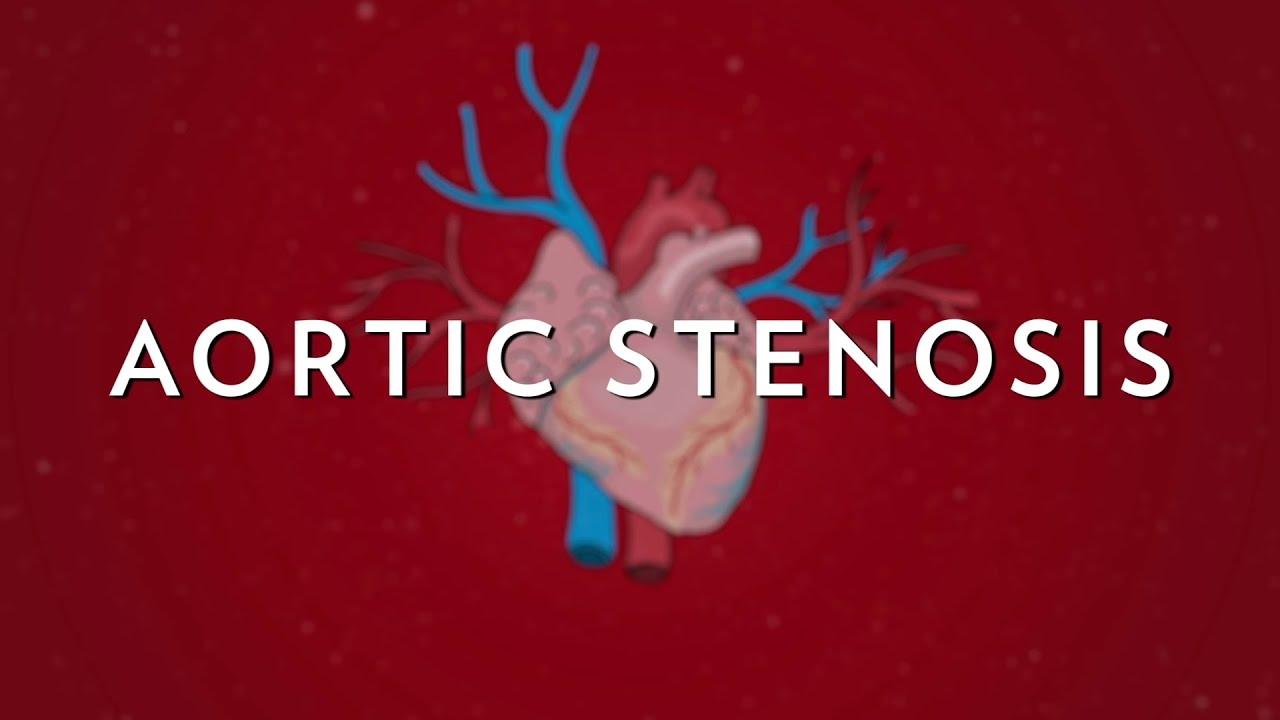svorio netekimas aortos stenozė