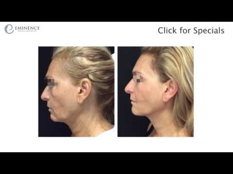 Ultherapy: Real Patient Before & After - Princeton NJ