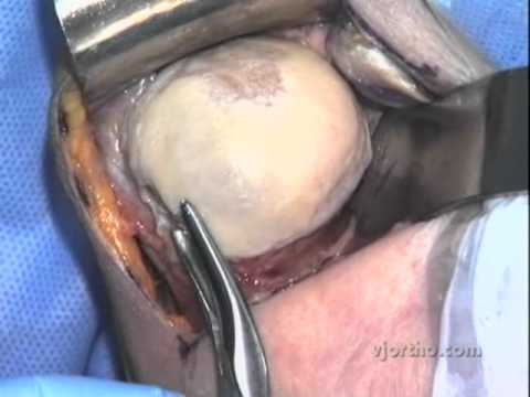 Shoulder Surgery: EAS Resurfacing Shoulder Arthroplasty