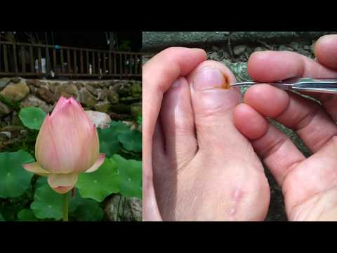 Vipassanā禪觀結合念佛,如何應用在日常生活中?(剪指甲)