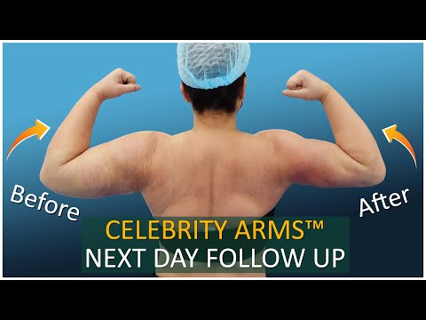 Arm Liposuction Follow Up Results   Celebrity Arms™   Lipo 360° Arms   High-Definition Expert Dr. Su