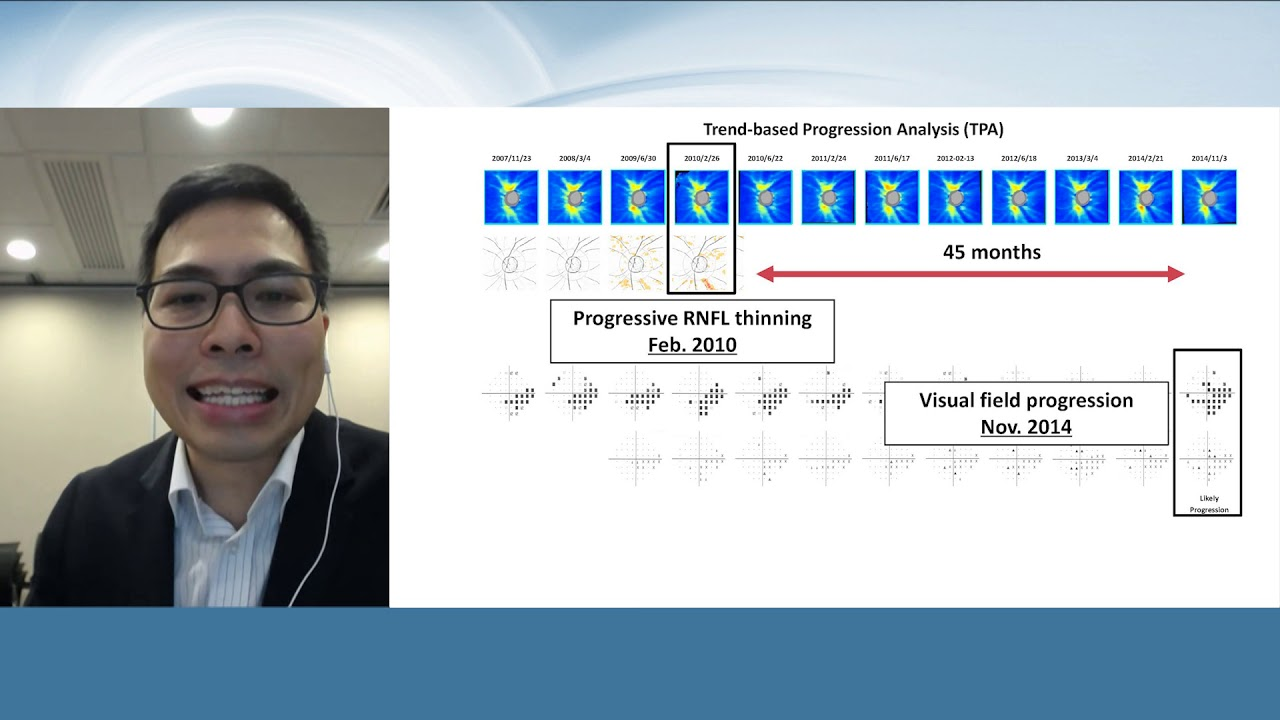 How to detect glaucoma progression? the current concepts