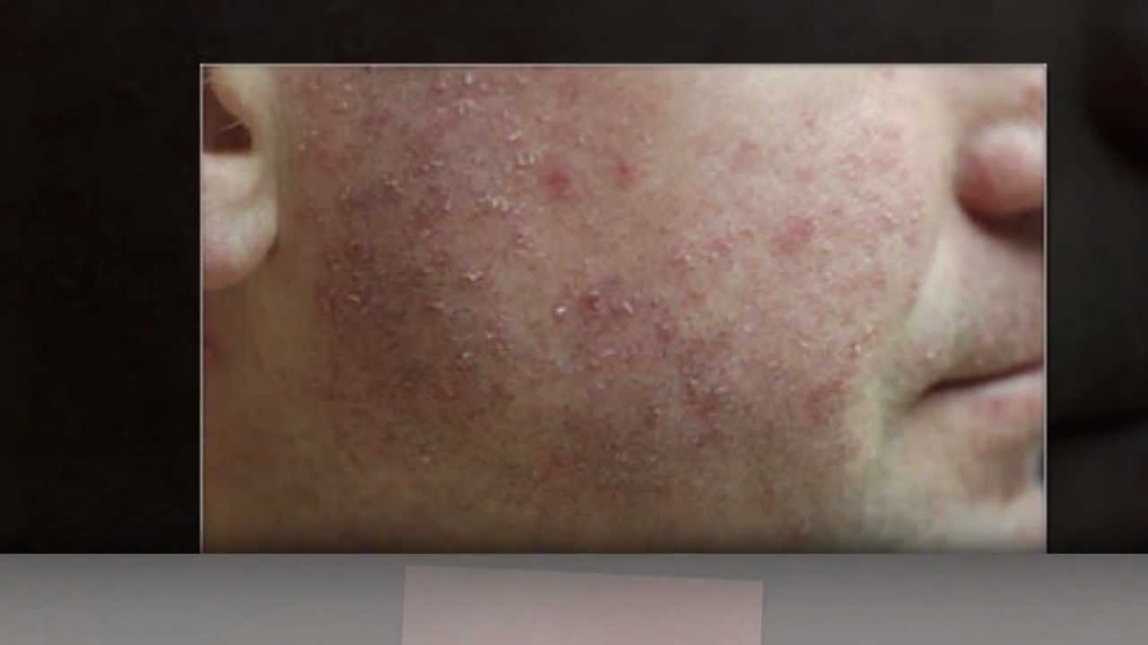 What Is Amoxicillin Rash Amoxicillin Rash Pictures Youtube