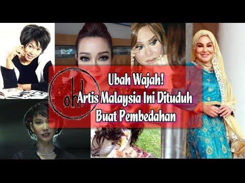 Ubah Wajah! Artis Malaysia Ini Dituduh Buat Pembedahan
