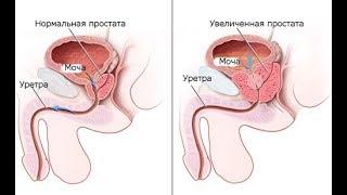 Лечение аденомы простаты без операции с помощью системы уролифт