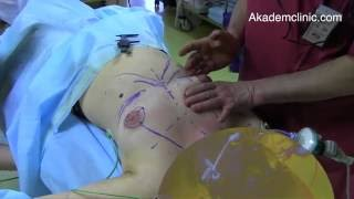 Коррекция тубулярного дефекта молочных желез