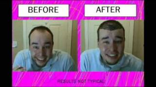 Bald B Gone - Cure for BALDING?!