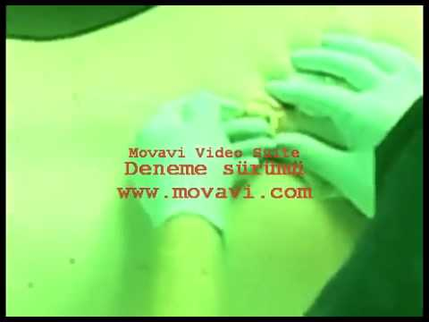 Sebaceous Cyst Abscess Sac Removal | Hair Stylist Fashion Tips