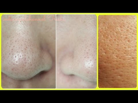 Thumbnail: Get Rid of Large Pores/ 4 best remedy/ Get Smooth, Tighter,Younger Looking Skin
