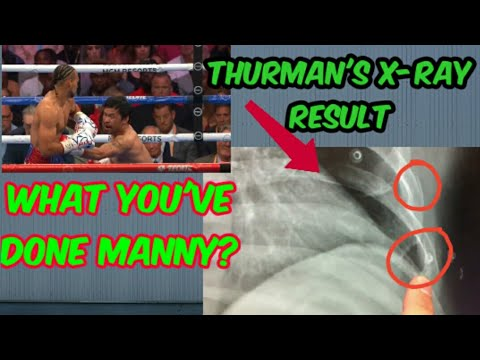 thurmans X-RAY RESULT,