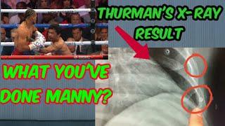 thurmans X-RAY RESULT, broken ribs found