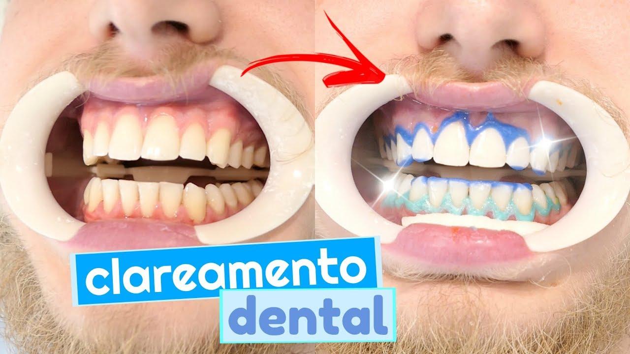 Tudo Sobre Meu Clareamento Dental Duvidas E Como Funciona Clarear