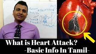 What is Heart Attack? Symptoms, Reasons | Basic explanation by Drawing | In Tamil Language - Part 1
