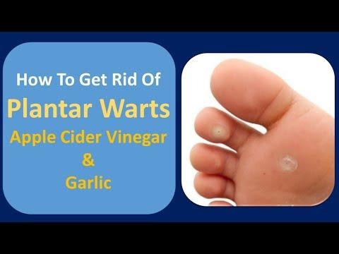 how-to-get-rid-of-plantar-warts-|-apple-cider-vinegar.&garlic