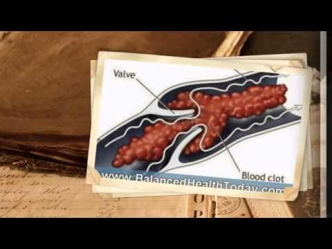 Beta Sitosterol Reviews - Poart 3 (Prostate Health) Beta Sitosterol Reviews
