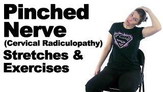 Cervical Radiculopathy  Orthogate