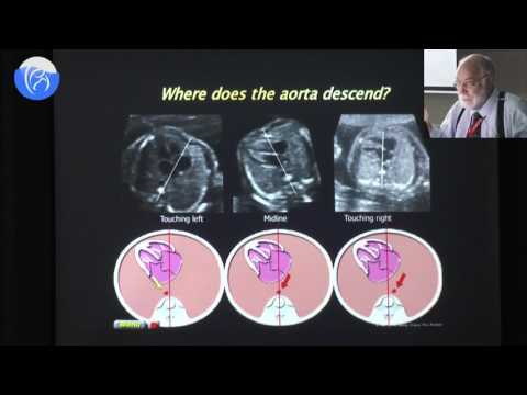 Detailed Fetal Cardiovascular Ultrasound Anatomy And Cardiac Views Prof  Philippe Jeanty