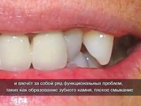 Одни зубы сзади других