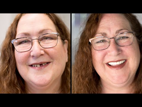 Erin Sage receives free full-arch replacement from Flint dental surgery center