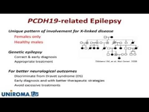 Early clinical features and treatment efficacy of antiepileptic drugs in Japanese patients...