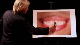 Cosmetic Dentist San Francisco 6 Thumbnail