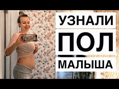 МАЛЬЧИК или ДЕВОЧКА? Видео из кабинета УЗИ!