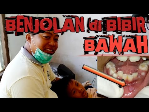 Benjolan Di Bibir|Operasi Benjolan Bibir|Mucocele|Eksisi Mucocele.