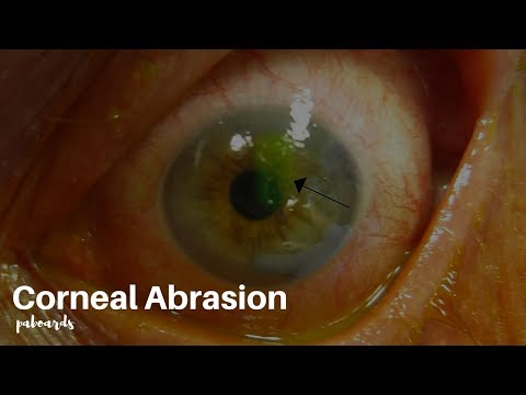 Eye injuries: Corneal abrasion