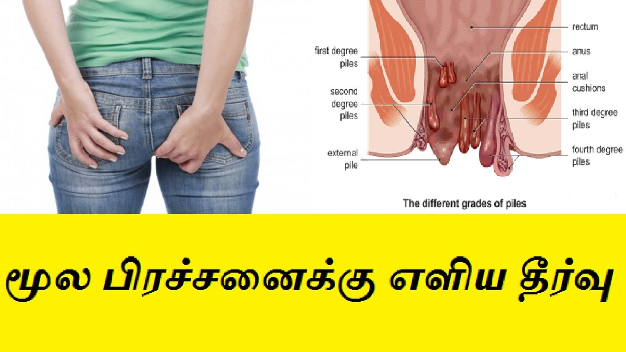 home remedy for piles in Tamil