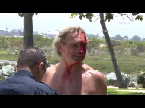 National City: Naked Homeless Guy Attacked 05182019