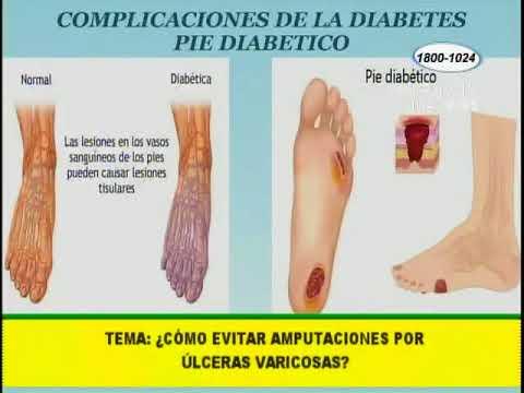 evitar la amputación de diabetes