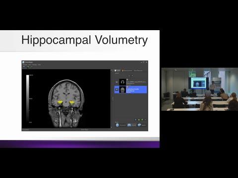 Neuroimaging Biomarkers for Alzheimer's Disease